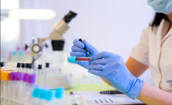 Perfusão de sangue pode melhorar problemas de memória