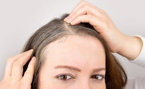 O estresse pode fazer com que o cabelo fique grisalho, mas pode ser reversível