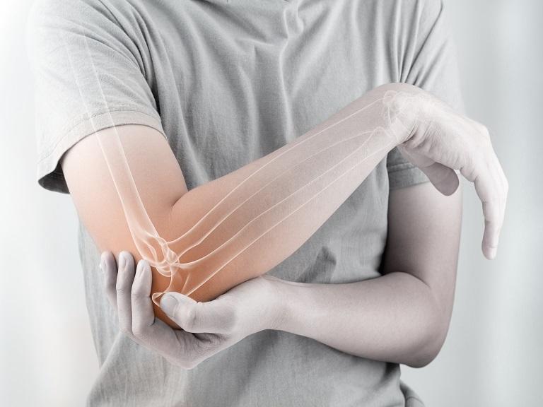 Ejercicio moderado en la juventud podría prevenir la osteoporosis según estudio