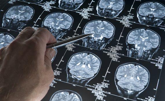 Inteligencia artificial para el diagnóstico prematuro del Alzheimer