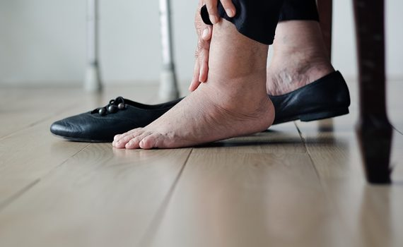 Sensación de piernas hinchadas y cansadas en adultos mayores